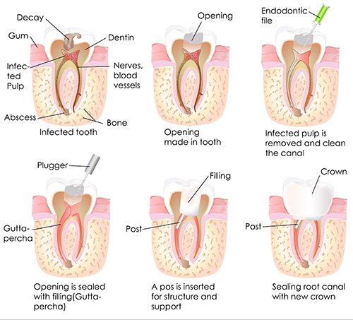 North Miami Beach Root Canal