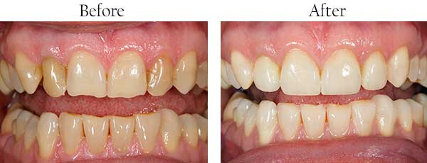 North Miami Beach Before and After Braces