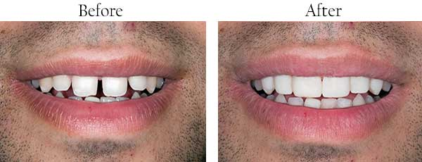 North Miami Beach Before and After Smile Makeover