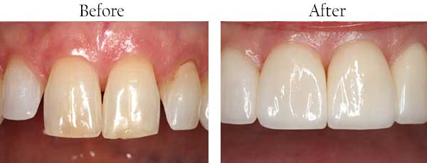 North Miami Beach Before and After Dental Implants